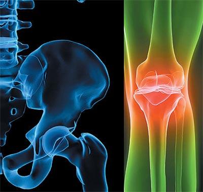 رتفاع الكوليسترول يؤدي إلى هشاشةالعظام